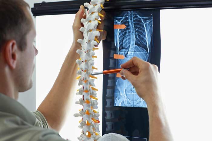 Imagerie Squelette - Radiologie Paris